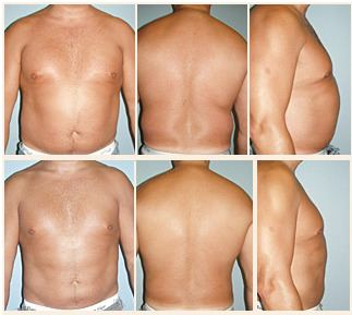 Men's Liposuction Before and After Results