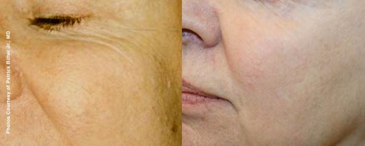 Before Treatment: 58 Years Old | After 67 Years Old After 9 Years of Treatments