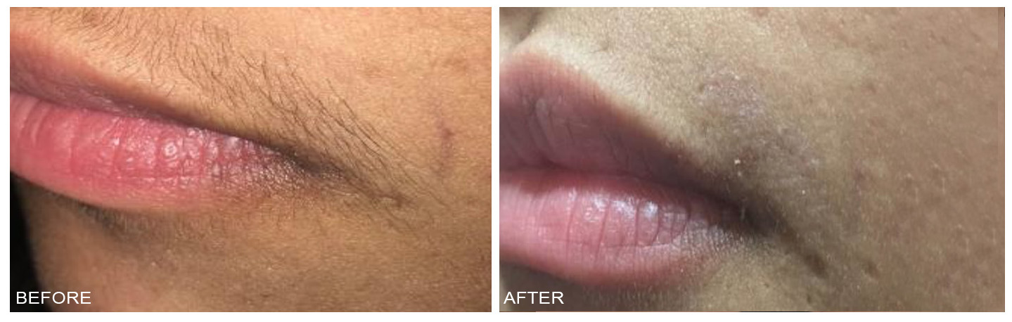 Pain Free Laser Hair Removal Fort Lauderdale Motux Ax Cooper City